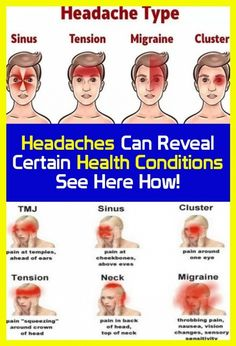 Can reveal certain health conditions? Headaches Can reveal certain health conditions. Head Muscles, Muscles Of The Neck, Tension Migraine, Migraine Pain, Reasons For Headaches, Sinus Inflammation, Eye Pain, Cluster Headaches, Nasal Congestion