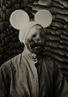 Iodine deficiency, acid scars or leprosy. Mickey mouse ears.