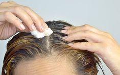 Hair Fall Problems
