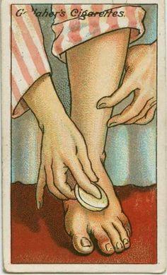 L'astuce d'autrefois qui marche encore aujourd'hui pour soigner les engelures.