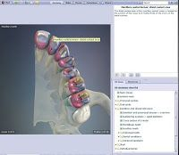 Primal Pictures 3D human anatomy medical software: 3D Anatomy for Dental Hygiene - Maxillary teeth
