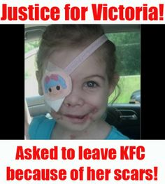 petition; Fire KFC employee that asked girl to leave because her scars frighten customers!>> Repin no matter what!