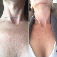 Rodan + Fields is not just for your face! Want your chest to look more smooth in that strapless dress? Check out this Before & After from a woman who started using the REVERSE AND REDEFINE Regimen along with the MACRO Exfoliator. Amazing! Message me for info!
