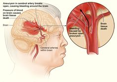 There are two main causes of stroke. The second cause is haemorrhagic – which is a weakened blood vessel supplying the brain bursts and causes brain damage. There is also a related condition known as a transient ischaemic attack (TIA), where the supply of blood to the brain is temporarily interrupted, causing a 'mini-stroke'. TIAs should be treated seriously as they are often a warning sign that a stroke is coming.