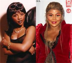 Black Pride Means Being Black, Not Bleached Lil Kim Plastic Surgery, Plastic Surgery Pictures, Botched Plastic Surgery, Bad Plastic Surgeries, Plastic Surgery Gone Wrong, Celebrity Plastic Surgery, Kim Before And After, Celebrities Then And Now, Music