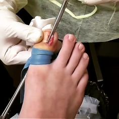 How to remove an ingrown #shinynails #uñasnaturales #allacrylic #samedaydelivery #pressonnails #thegelbottle #makethemgelish #nailfoil #encapsulatednails #galaxynails . . 🎧French Montana ft. Swae Lee- Unforgettable