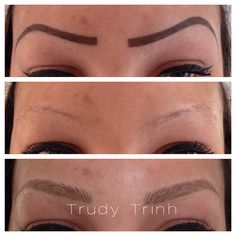 Drastic shape change to a more natural looking set of brows using Trudy's specialized microblading technique!  www.naturalimpressions.biz