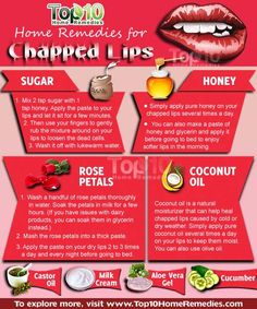 Natural Remedies For Skin Home Remedies for Chapped lips Dry Lips Remedy, Chapped Lips Remedy, Sore Lips, Sore Throat, Top 10 Home Remedies, Natural Home Remedies, Holistic Remedies, Diy Lip Scrub, Diy Halloween Dekoration
