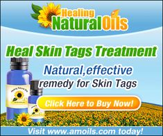 Accurate Skin care recipes and remedies. Sharing natural skin care tips, recipes and remedies I have collected over the years which would help you make homemade skin care remedies. Skin Tag On Eyelid, Skin Tags On Face, Skin Tags Home Remedies, Eczema Remedies, Hair Remedies, Health Remedies, Natural Remedies, Skin Tag Treatment, Skin Treatments