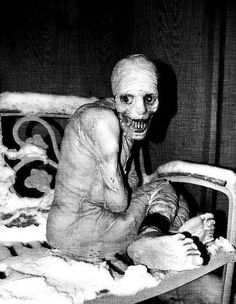 In the 1940s there was an experiment to see if we were capable of keeping people awake for long periods of time. Subjects were exposed to a toxic gas to keep them from sleeping, and after long enough, this was the result. Click picture for full story. (Scariest thing I have ever read) <---- Okay yeah I am really freaking scared and I will have an extremely hard tie sleeping tonight.         Wow that's creepy