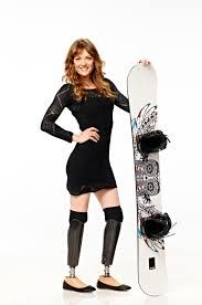 Amy Purdy - contracted bacterial meningitis & lost her lower legs and kidney function, & got a kidney transplant from her Dad