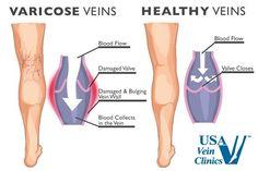 Vein Disease Treatments - http://www.usaveinclinics.com/