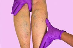 Rockville Spider Veins Causes and Treatment - Sclerotherapy Weight Charts For Women, Weight Loss For Women, Varicose Veins Treatment, Pregnancy Hormones, Best Weight Loss Pills, Hormone Replacement Therapy, Female Hormones, Diets For Women, Regular Exercise