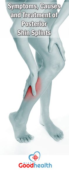 Symptoms, Causes and Treatment of Posterior Shin Splints