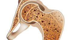 Τι μπορείτε να κάνετε για να προλάβετε την οστεοπόρωση Human Anatomy, Human Body Anatomy, Body Anatomy