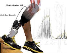 Bionics: volgende generatie protheses, Vogel Foto Studio