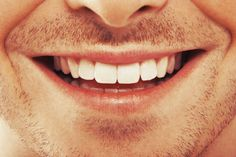 Pearly white teeth and decent breath does not always guarantee a perfect oral health. Of course, a healthy oral hygiene is necessary but certain symptoms beyond Dental Health, Oral Health, Dental Care, Health Care, Kissing Facts, Smile Teeth, Braces Smile, Teeth Braces, Best Oral