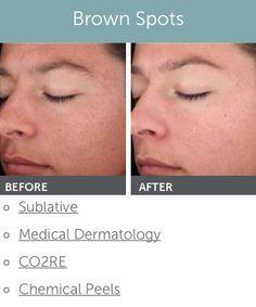 Does plan? Facial rejuvenation wyoming right!