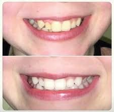 nu skin whitening toothpaste - Google Search Whitening Fluoride Toothpaste, Teeth Whitening, Ap 24, Nu Skin, Cavities, Anti Aging Skin Care, Breastfeeding, Back To School, Health