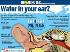 News – The London Free Press Swimmers Ear, London Free, Swimming Tips, Infographics, Fitness, Fat, Infographic, Info Graphics, Visual Schedules
