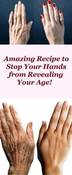 Beauty Remedies DIY anti-aging hand solutions - The aging process is a natural and normal process manifested with the first obvious signs reflected on our skin like wrinkles, enlarged pores, sagging skin on our face and neck, . Beauty Secrets, Beauty Hacks, Beauty Ideas, Beauty Skin, Health And Beauty, Beauty Care, Hair Beauty, Get Rid Of Blackheads, Hand Care