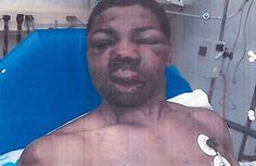 Robert Hinton was killed after winning a police brutality case for the beating he endured while on rikers island.