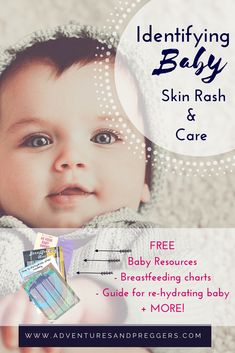 Baby Skin Rash Care + Baby Skin Care- Learn the most common types of baby skin rash occurrences and how to treat them. These baby skin care guidelines are the perfect place to start with your infant skin care needs.