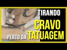 Como tirar um Cravo perto da tatuagem? - YouTube