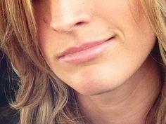 Beautiful Lips by Jennifer Cline R.N   using Juviderm Ultra Plus XC.