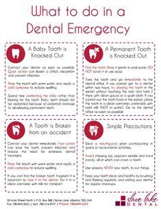 Cruel Dental Implants Before And After Oral Health Dental Health, Oral Health, Dental Care, Health Fair, Health Tips, Dental Fun Facts, Dental Assistant Study, Dental Humor, Dental Hygienist