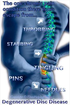 Activities to Avoid With Spinal Stenosis
