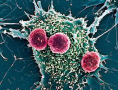 Recent research on cannabis curing cancer has uncovered the exact mechanisms through which this phenomenon is possible.