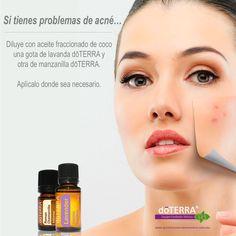 Elimina los problemas de acné naturalmente con aceites esenciales doTERRA. Usa Lavanda y Manzanilla. Visita nuestra tienda en línea, hacemos envíos a todo México. Quiero formar parte de doTERRA? Adquiere tu membresía en nuestro sitio