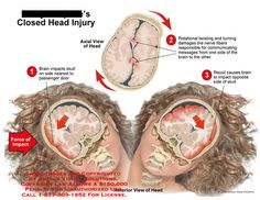 Side to side coup-contrecoup brain injury with rotational twisting.