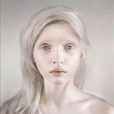 Albinismo (241)Donna