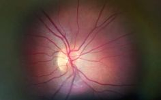 眼の検査を発展途上国にも。失明のリスクを抑える検査機「Peek」