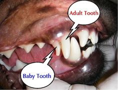 adult tooth baby totoh