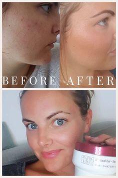 Aha Peel, Nu Skin, Chemical Peel, Healthy Skin Care, Beauty Secrets, The Secret, Anti Aging, Facial, Glow