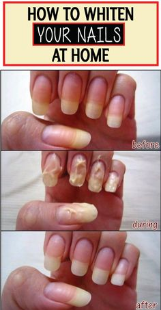 Just Wanted To Share With You Girls How I Whiten Nails When They Get Yellow