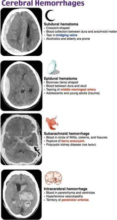 Medical Basics - Medical Education Made Simple Cerebral Hemorrages Nursing School Notes, Icu Nursing, Medical School, Nursing Degree, Nursing Schools, Pharmacology Nursing, Brain Anatomy, Medical Anatomy, Medical Students