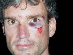 Biking accident - Accident Victim