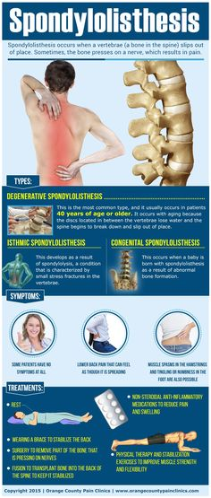 Spondylolisthesis-by-Orange-County-Pain-Clinics