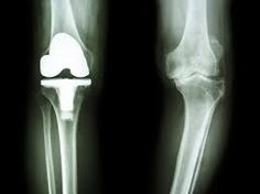 Knee replacement surgery involves replacing some or all of the components of the knee joint with a synthetic implant, to repair the damaged weight-bearing surfaces that are causing pain .