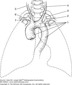 Oblique Ribs- used to visualize anteriolateral
