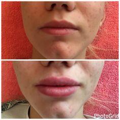 Powiększanie i modelowanie ust kwasem hialuronowym Aliaxin #medycyna #estetyczna #spa #isabelspa #kwas #hialuronowy