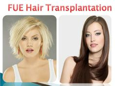 Locks problem is a most common illness in the present creation in all planets. To get over we offer a particular treatment to cure the hair by FUE Locks Hair Transplantation at very low-cost in India.
