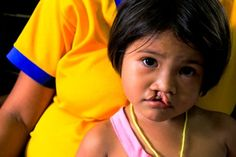 Did you know that every 3 minutes a child somewhere in the world is born with a cleft lip or cleft palate? 1 in 10 children born with a cleft condition will die before they reach their first birthday.    For as little as $240 and in as few as 45 minutes, we can change their lives forever.    http://wecanchangeforever.com/