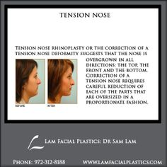 Tension nose rhinoplasty or the correction of a tension nose deformity suggests that the nose is overgrown in all directions: the top, the front, and the bottom. @LamFacialPlastics #LamFacialPlastics #DrSamLam #PlasticSurgery #DallasPlasticSurgeon #TensionNoseDeformity #TensionNoseRhinoplasty