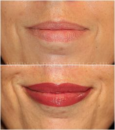 Before and after picture of lip liner tattooed on. After ...