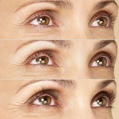 9842ed9a67a 20 Best LATISSE images in 2017 | How to grow eyelashes, Lash growth ...